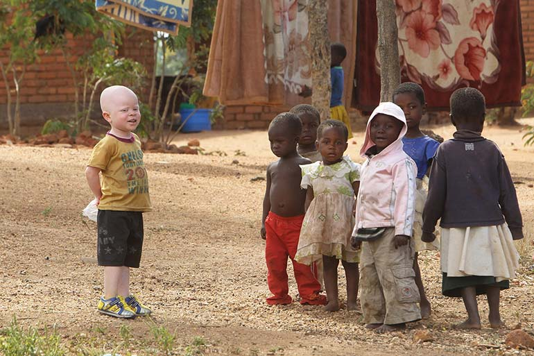 a year in pictures june 7 2016 african albino boy with his friends